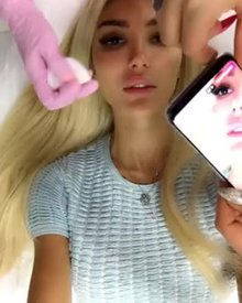 Cute little teen blonde getting her lips injected with silicone